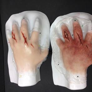 Hand break prosthetic