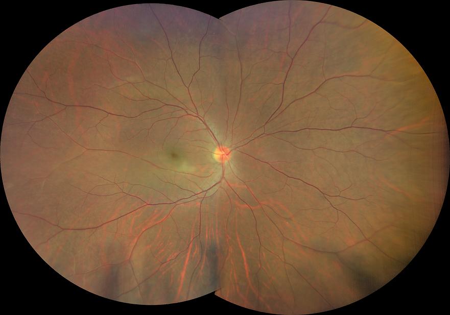 Digital Widefield Retinal photo