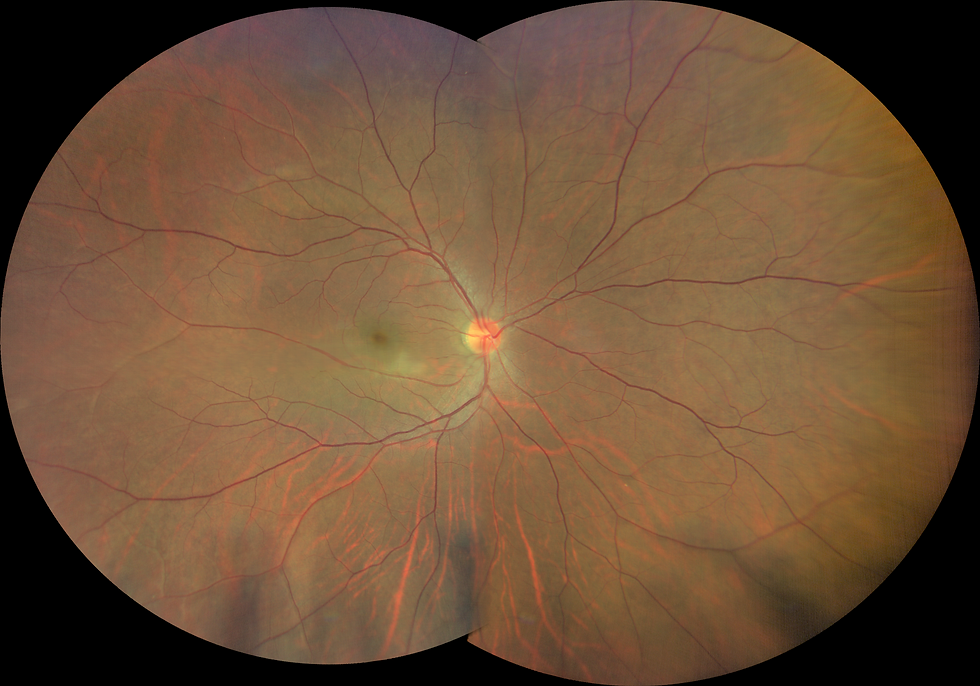 Digital Widefield Retinal photo