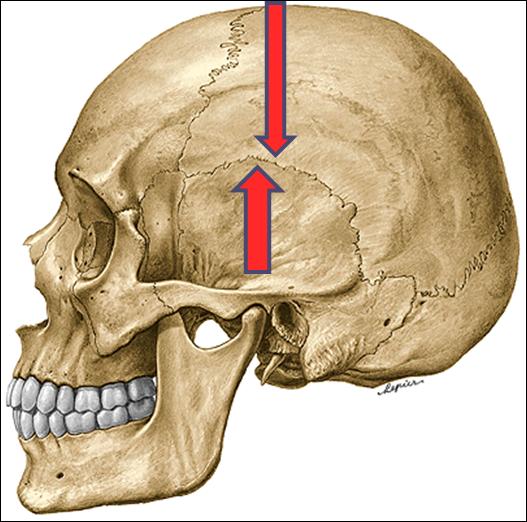 Resultado de imagem para sutura temporoparietal