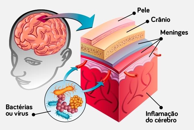 Resultado de imagem para meningite