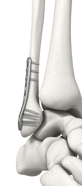 OsteoCentric-Distal-Fib-Plate.png