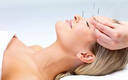 acupuntura-para-estetica.jpg
