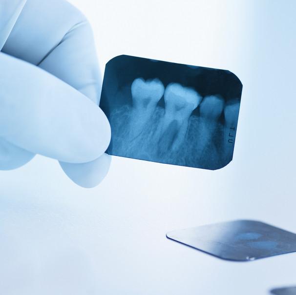 חבלה בשיניים
