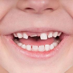 iStock_17622675_kid_teeth_1150x800_edite