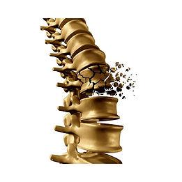 broken spine (2).jpg