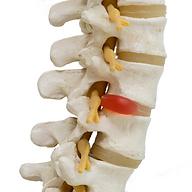 broken spine.png