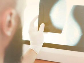 A importância da mamografia