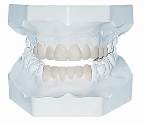 smile design 3 - model.png