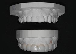 smile design 4- prototype.jpg