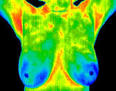 WHAT IS THE ALTERNATIVE TO MAMMOGRAMS?  Part 2