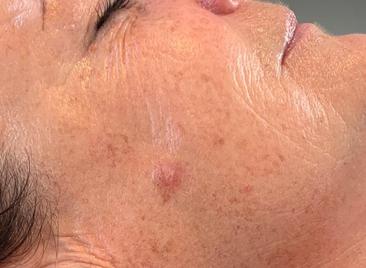 Black Diamond Facial - After