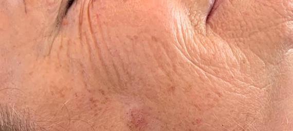 Black Diamond Facial - Before