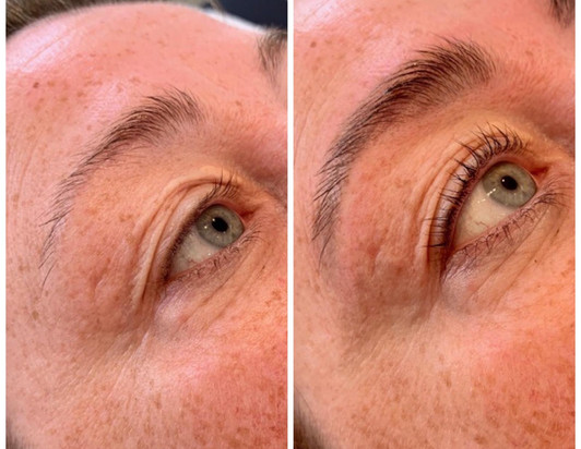 Before & After.jpeg.jpeg