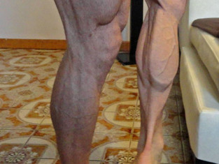 WHAT TO DO FOR LAGGING CALF MUSCLES