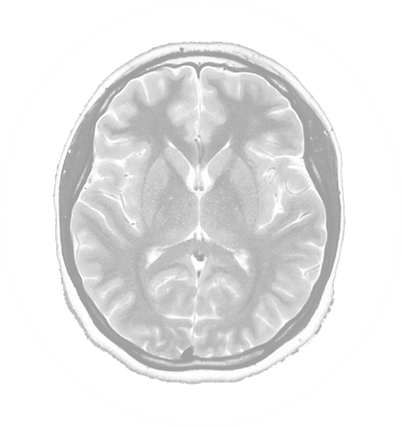 MRI for website white.png