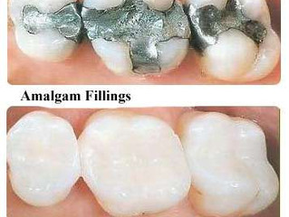 The facts on fillings: Amalgam vs. resin composite