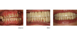 Crowns#5 (Implant)