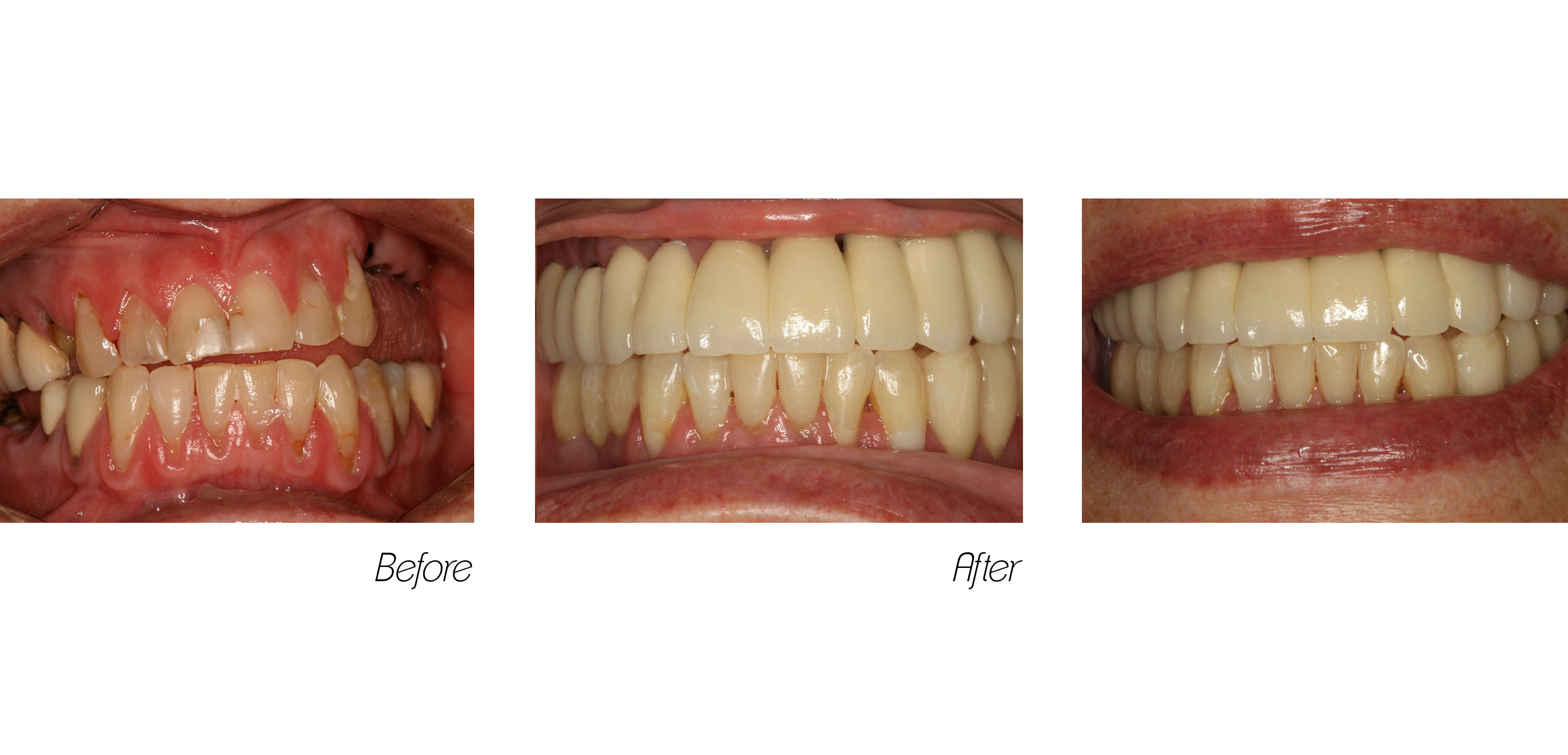 Crowns#9 (Implant)