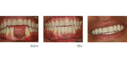 Crowns#8 (Implant)
