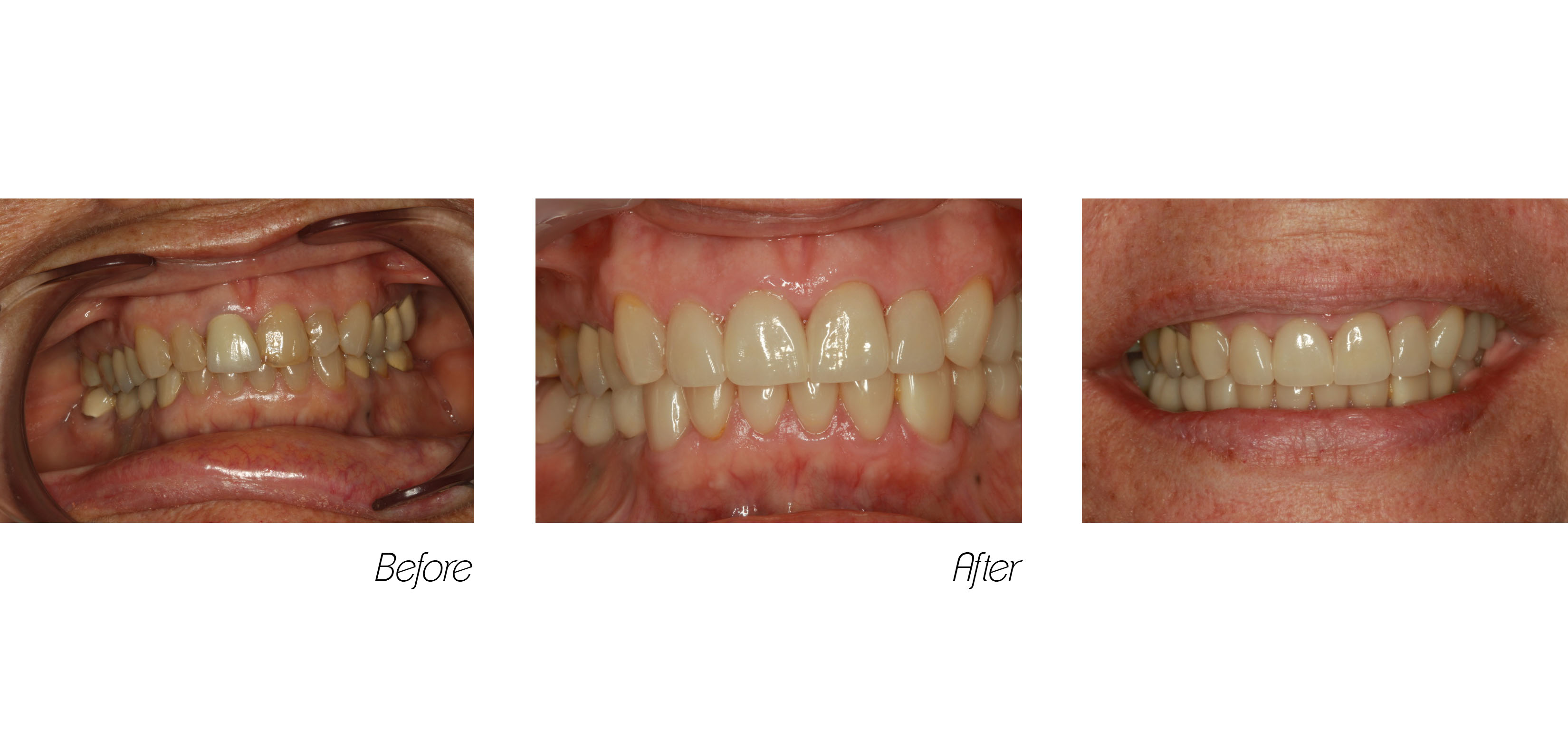 Full Mouth#5, Veneers and Crowns