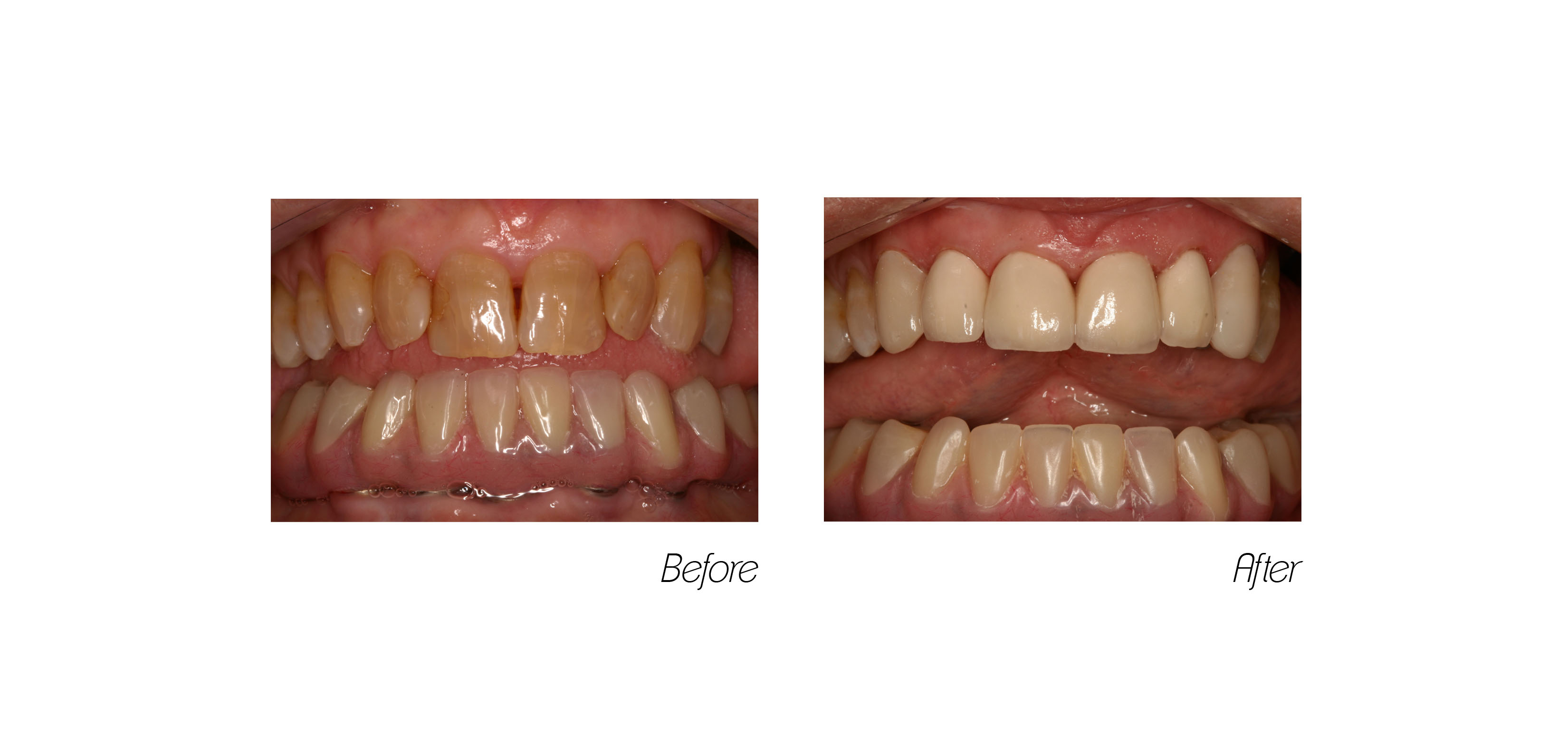 Full Mouth#3,  Upper Crowns and Veneers with Lower Implant Denture Bridge