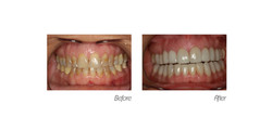 Full Mouth#4, Veneers and Crowns