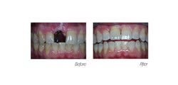 Crowns#3 (Implant)