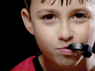 All about Mouthguards