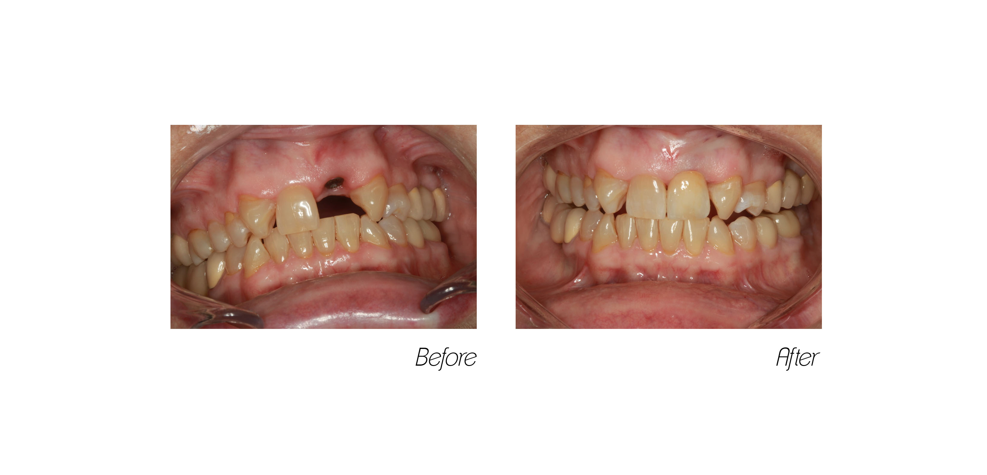 Crowns#7 (Implant)