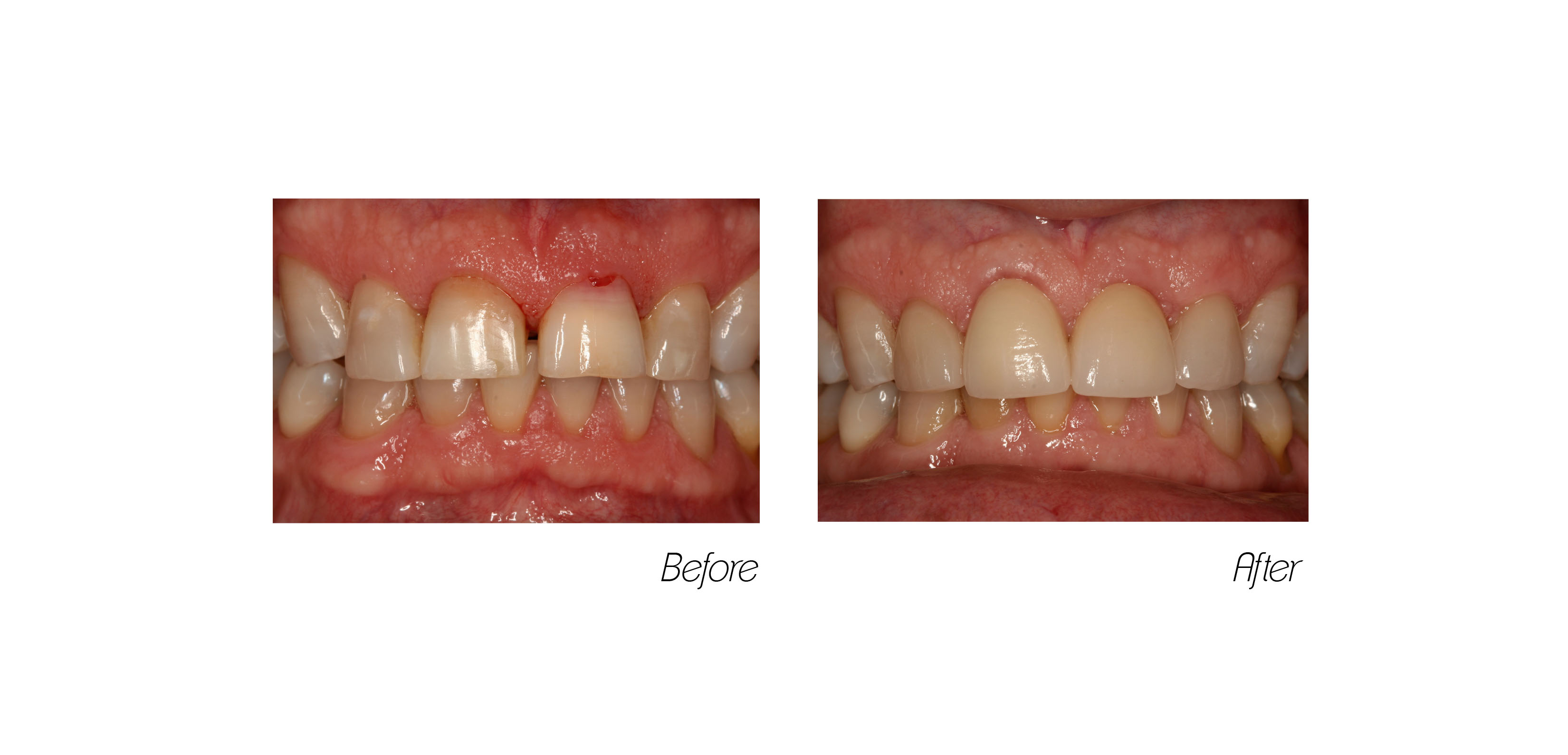 Crowns#6 (Implant)