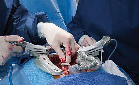 beating heart surgery.jpg
