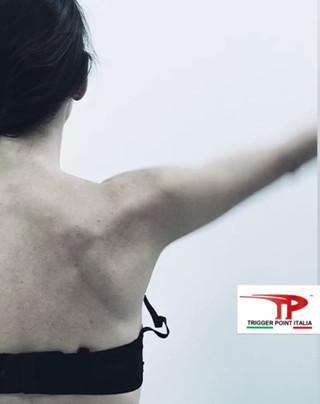 CONTROLLO MOTORIO: Differente attivazione dei muscoli scapolari nei pazienti con trigger points