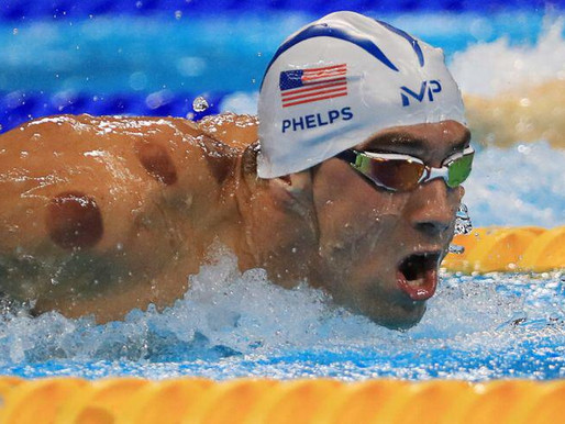 CUPPING THERAPY TRIGGER POINT