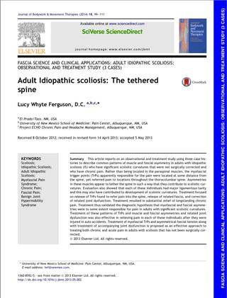 Trigger Points e Scoliosis. Perchè è importante trattare i trigger points in pazienti con scoiliosi?