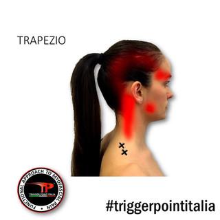 Efficacia delle tecniche integrate sui Trigger Points del trapezio superiore nel dolore cervicale no