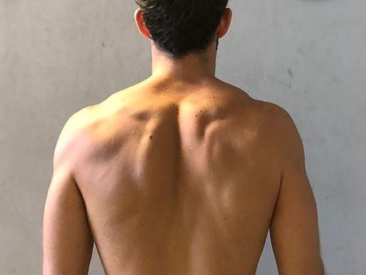 Sindrome da conflitto subacromiale, influenze dellapostura e Trigger Points.