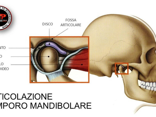 DISORDINE TEMPORO-MANDIBOLARE E TRIGGER POINTS