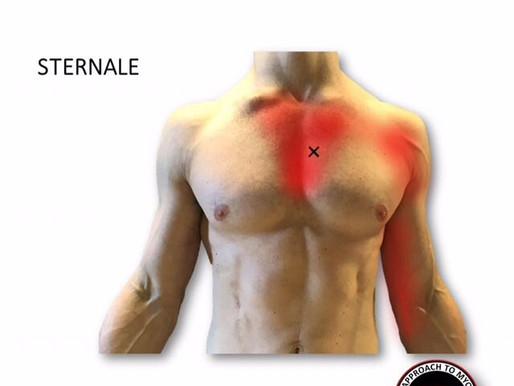 """Il muscolo disconosciuto: """"Sternale"""". Anatomia, Trigger Points, Esercizi"""
