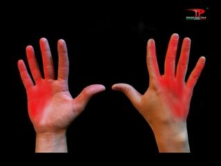 Trigger points: dolore riferito del terzo e quarto interosseo dorsale