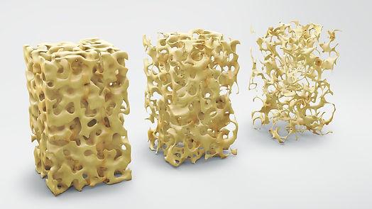 19.10.17_Osteoporose_cosmin4000_iStock_T