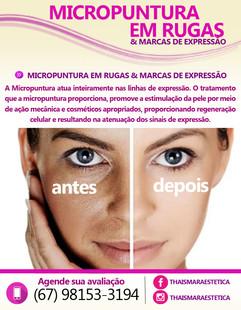 micropuntura RUGAS E MARCAS.jpg