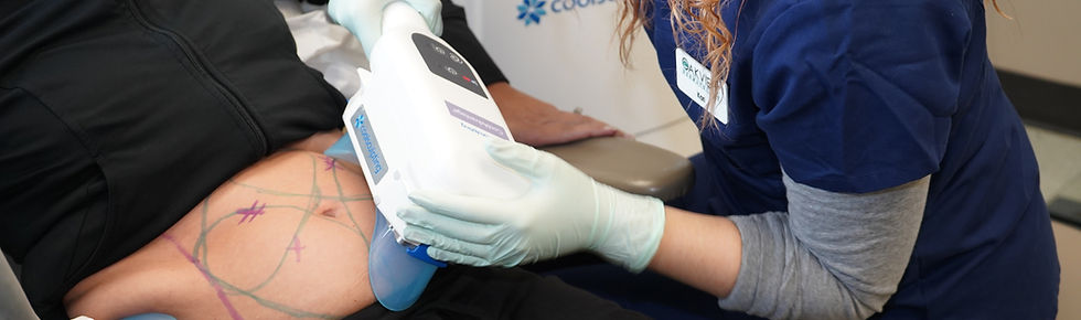 Coolsculpting - Oakview Dermatology