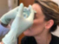 Allie R Botox (1).JPG