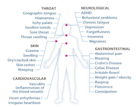 bodypictureallergies.PNG