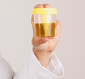 urine-sample.PNG