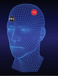 transcranial stimulation 04b.webp