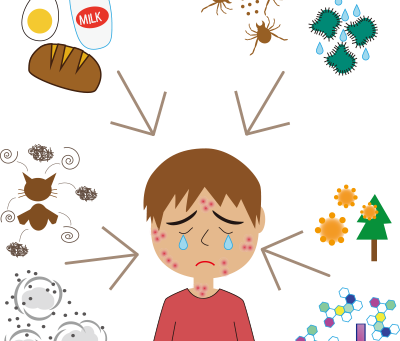 アレルギーは、いつから増えたの?