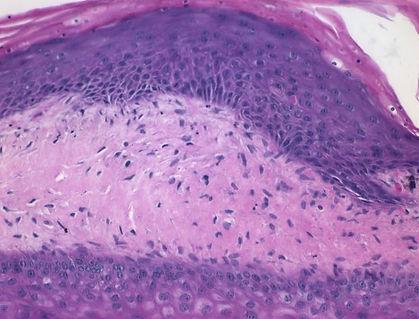sclerodermah&e2.jpg