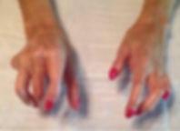 sclerodermahand.jpg